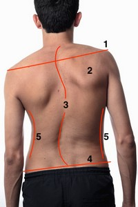 Boy Scoliosis posterior with lines